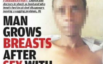 Shocking PHOTO Of A Man Growing Breast After Sleeping With A Married Woman
