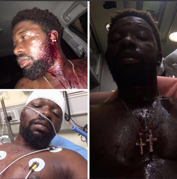 http://www.nsromamedia.com/wp-content/uploads/2016/07/showboy-beaten-up.jpg