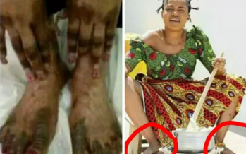 PHOTO: We Just Noticed Mzbel's Bleached 'Fanta face and Coca cola Feet'